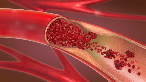 Illustration of cardiovascular disease stenosis