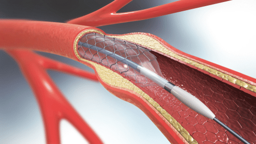 Illustration depicting Coronary Artery Disease stent placement