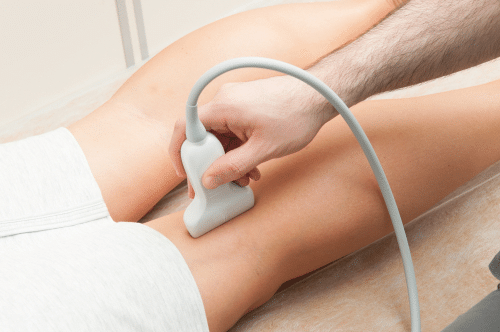 Patient receiving venous ultrasound on her legs